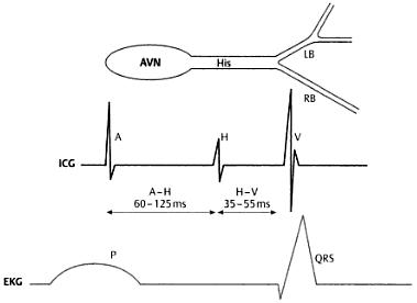 Abb. 1.1 Schematische Darstellung der atrioventrikulären Überleitung in Beziehung zu Oberflächen-EKG und intrakardialem Elektrogramm (ICG), AVN = AV-Knoten, Hls = Hls Bündel, LB = linkes Bündel, RB = rechtes Bündel
